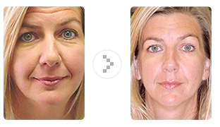 Acupuncture and facial rejuvenation