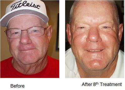 Microcurrent acupuncture facial rejuvenation images 827