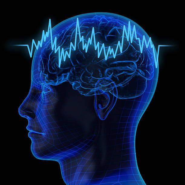 brainistock