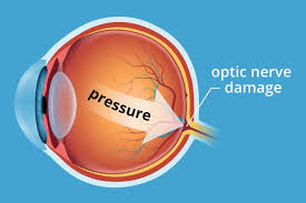 glaucoma allaboutvision