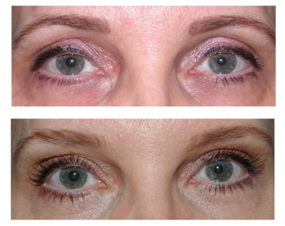 Sd Lash And Brow Conditioning Gel